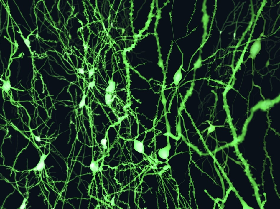 Cortical neurons marked with a fluorescent dye.