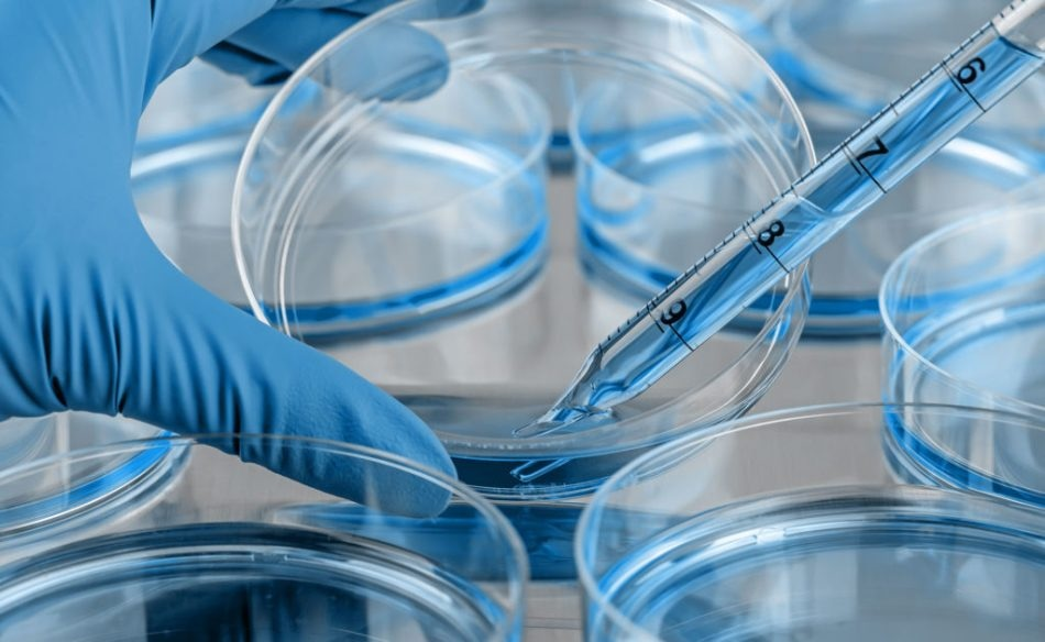 protein analysis Protein analysis and characterization services, in line with the ich q6b guidance, including protein structure analysis, physicochemical properties, biological activity, immunochemical properties and purity and impurities determination.