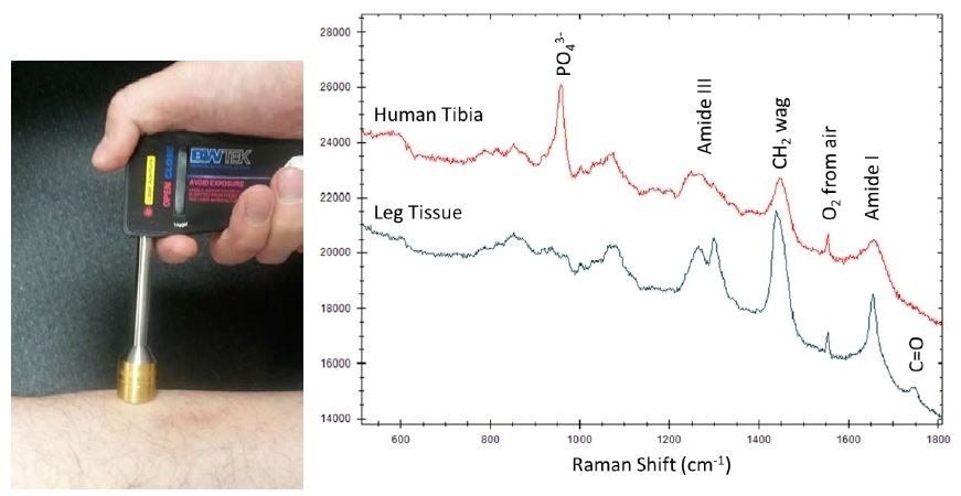 Transcutaneously collected STRam spectra of human tibia and leg tissue.