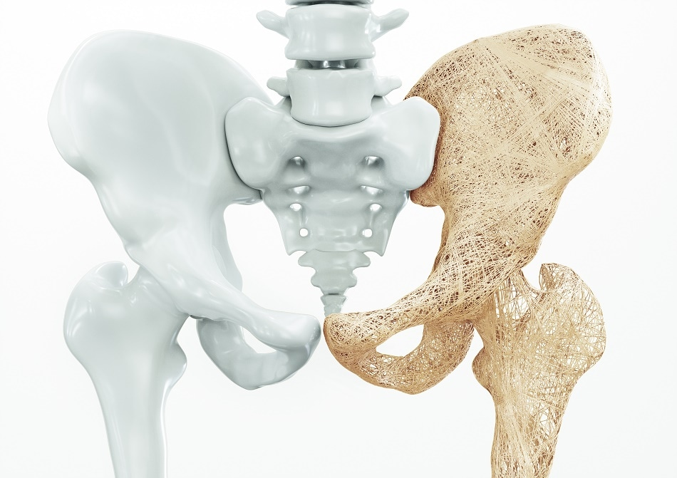 Increasing Demand of Technical Ceramics in the Medical Industry - What is  Driving It?