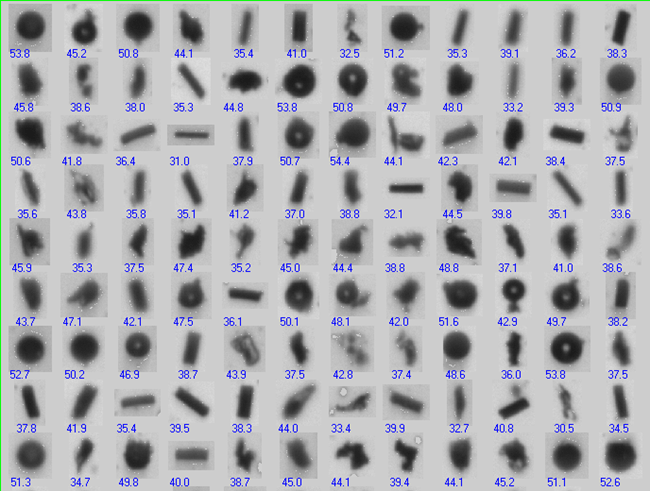"In looking at a sampling of the particle thumbnails, it is obvious that this sample is made up of more than one kind of particle shape. The ""diameter"" data may mislead the user into thinking the particles are all the same type when they are not."