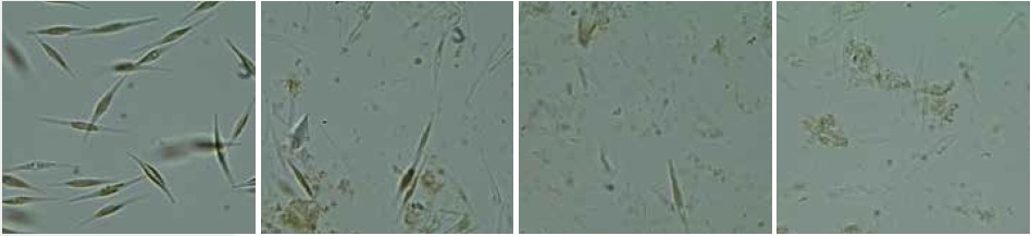 Cells of Phaeodactylum tricornutum before (left) and after cell disruption (middle and right) with the Mixer Mill MM 400 in combination with the adapter for conical centrifuge tubes; 3 x 60 seconds at 30 Hz.