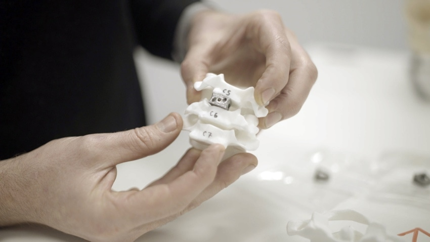 Creating Spinal Implants Using Additive Manufacturing