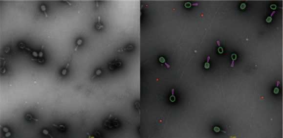 TEM Images of Bacteriophages.