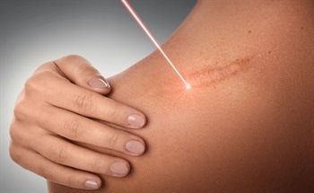 How Lasers Remove Tissues