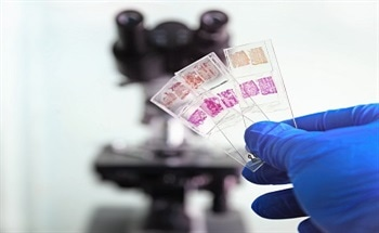 Technique for the Transfer of Tissue or Cytology Samples from Standard Slides to Positively Charged Slides
