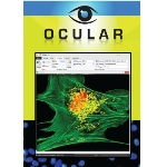 Intuitive Image Acquisition Software – Qimaging Ocular™