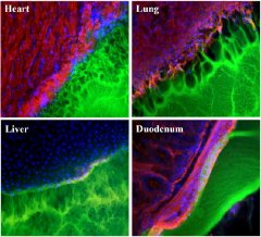 Images showing the interface between a surgical glue (green) and tissue samples (red, blue and black) from the heart, lung, liver, and duodenum. The glue works best with duodenum tissue (note smooth interface), and worst with lung tissue (pockmarked with holes).