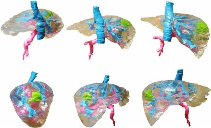 Researchers Successfully 3D Print Preoperative Planning Model of Human Liver