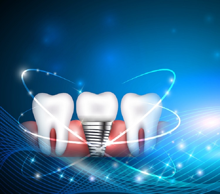 Using T-Scan Technology for Dental Medicine
