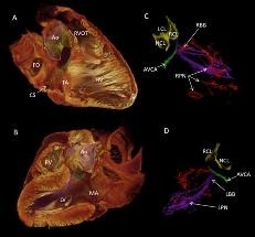Researchers Use 3D Data to Understand Cardiac Conduction System