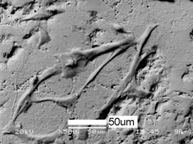 AZoJomo - The AZO Journal of Materials Online - SEM picture showing attachment of the osteoblast cells on the HA coating